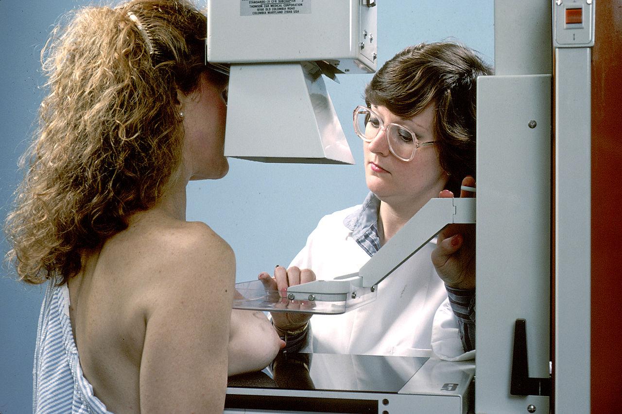 Wordt de mammografie-op-maat de nieuwe screeningsmethode?