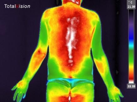 Thermografie is ook voor mannen
